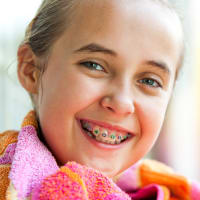 Early Orthodontics, Childrens Dentist, North Delta